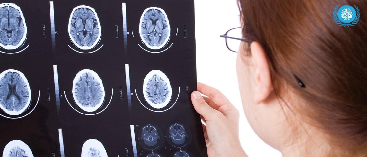 Киста головного, киста головного мозга симптомы, киста головного