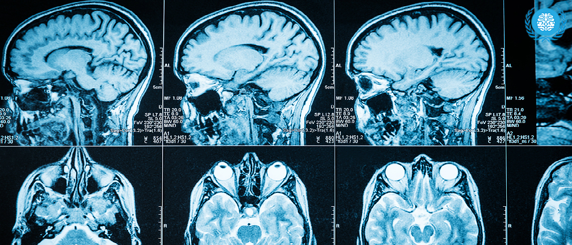 Гидроцефалия головного мозга у взрослых