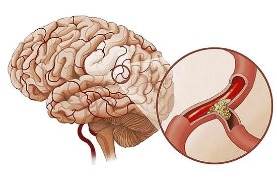 Коронарные сосуды головного мозга