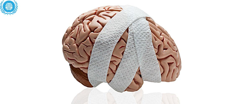 К чему может привести ушиб мозга головы 0