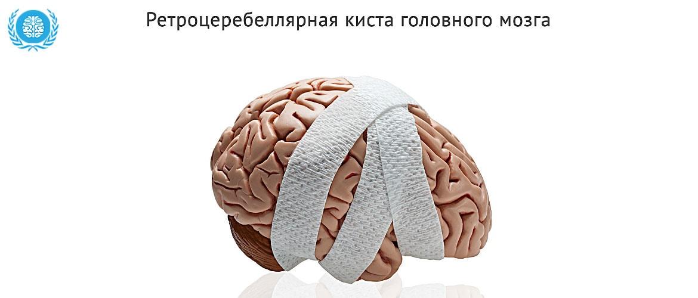 Hетроцеребеллярная киста головного мозга