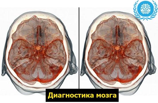 Как инфаркт влияет на головной мозг