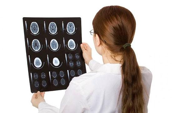 Изменение вещества мозга дистрофического характера лечение