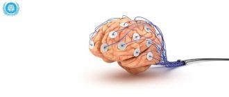 ЭЭГ мозга ребенку