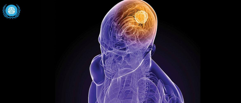 Энцефалит головного мозга: причины и последствия