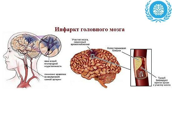 Ранний восстановительный период инфаркта мозга по мкб 10