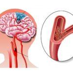 Инфаркт головного мозга