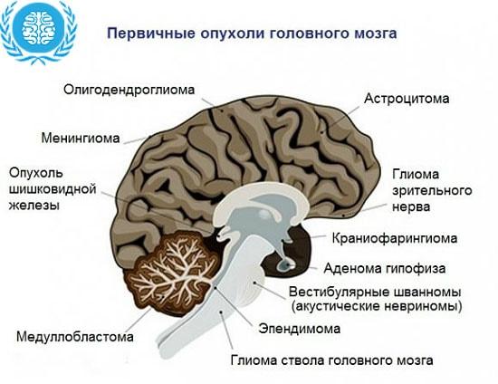 Этапы рака головного мозга