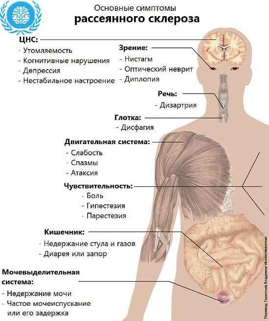Рассеянный склероз причины возникновения