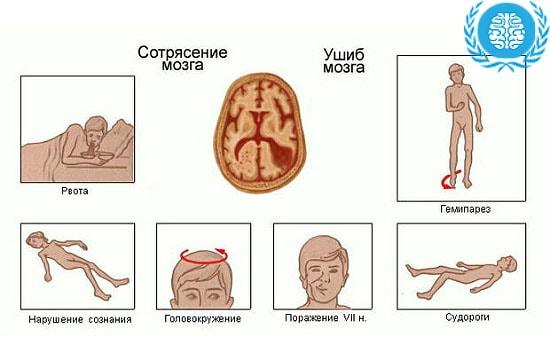 Как можно получить сотрясение мозга