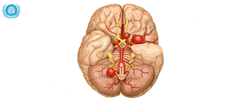 Бляшки в сосудах головного мозга
