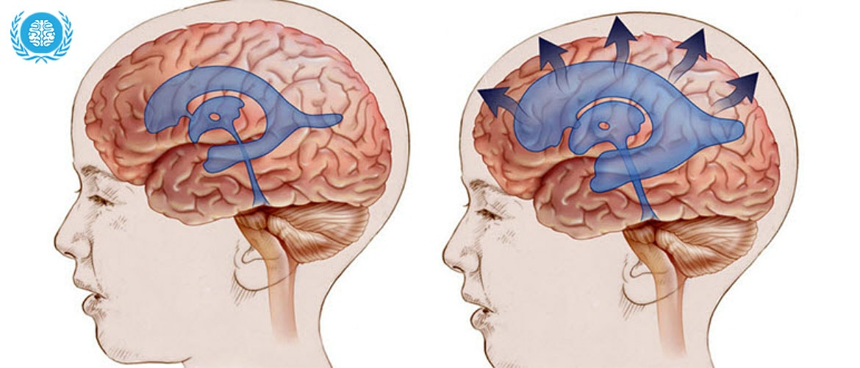 Гидроцефалия головного мозга у взрослых и детей – причины, симптомы и лечение водянки