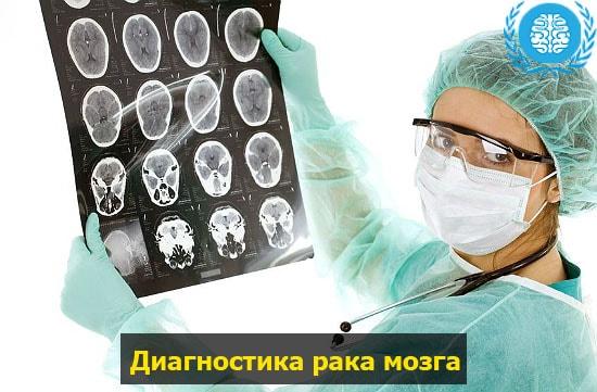Рак головного мозга — Симптомы на ранних стадиях, методы лечения и советы врачей