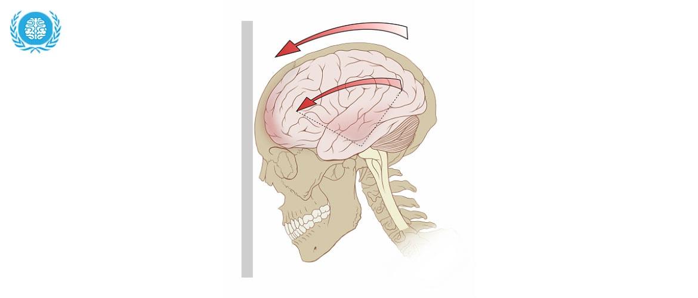 Гематома головного мозга — Основные виды и формы, симптомы и методы лечения, советы врачей