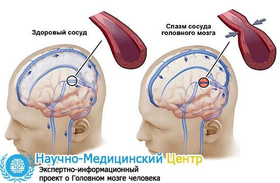 Спазмы сосудов головного мозга мигрень